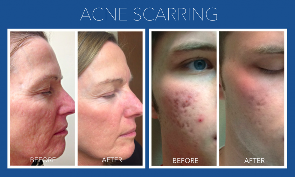 Acne Scarring - Micro Needling Springfield MO