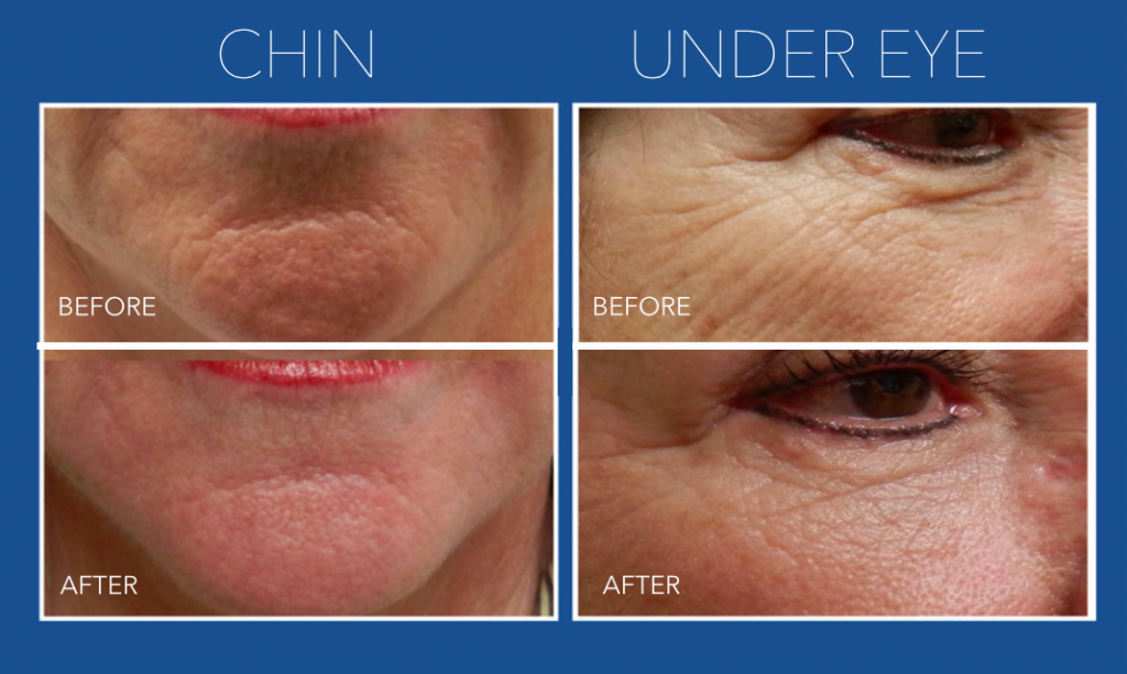 Reduce Acne Scars and Wrinkles With Micro Needling