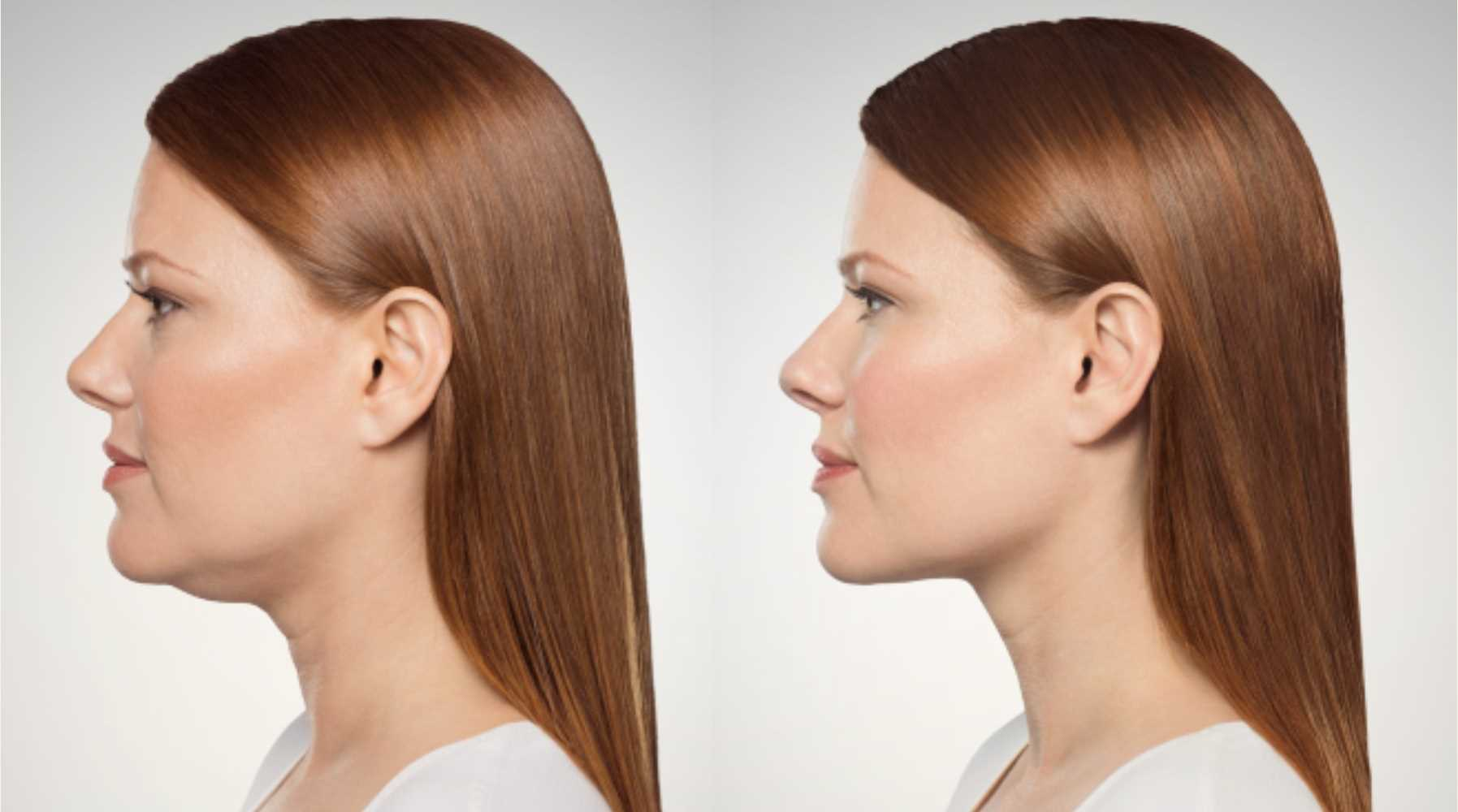 Double Chin Treatment - Kybella Springfield MO