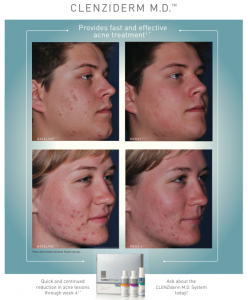 Clenziderm Before and After - Skincare Solutions For Teen and Adult Hormonal Acne Springfield MO