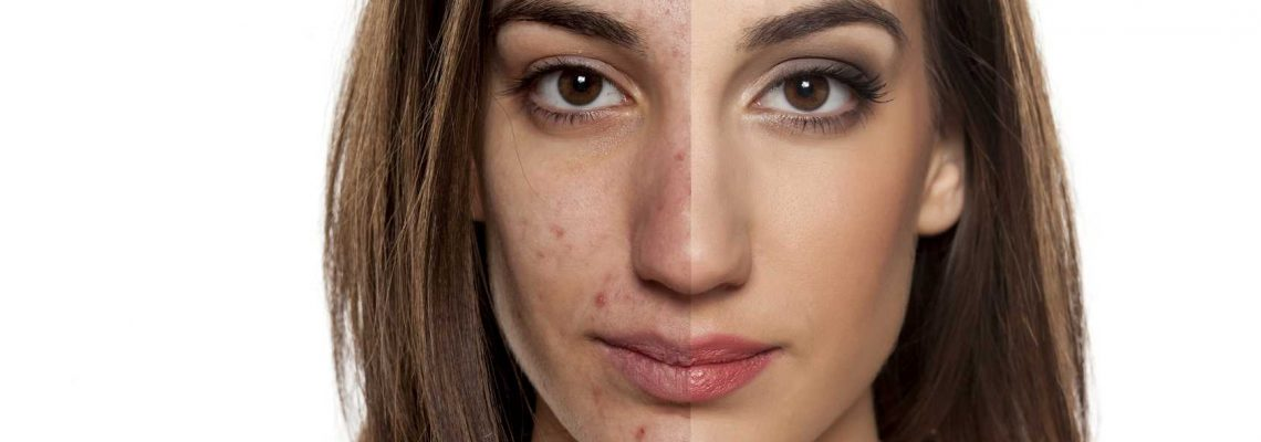 Skincare Solutions For Teen and Adult Hormonal Acne Springfield MO