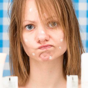 Fighting Your Teen's Hormonal Acne in Springfield Missouri