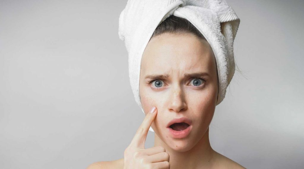Defeat Acne With the CLENZiderm M.D.™ System - Acne Treatment in Springfield Missouri