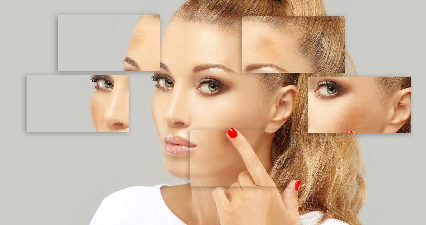 Introducing A Pigment Balancing Chemical Peel In Springfield Missouri