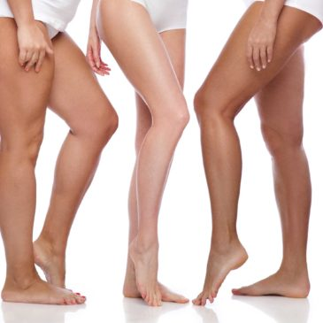 Is Sclerotherapy in Springfield Missouri Right For Me?