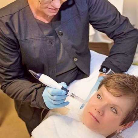 Reduce Acne Scars and Wrinkles With MicroNeedling Medical Esthetics Springfield Missouri