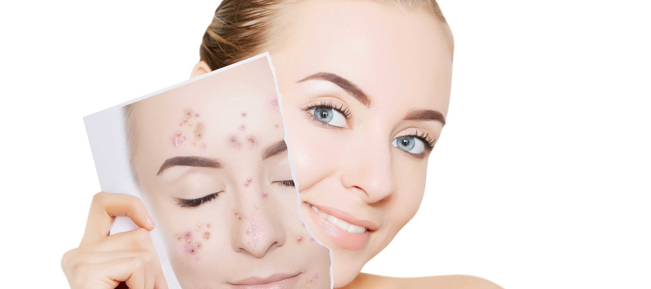 Improve Your Teen's Complexion With Acne Treatments in Springfield Missouri