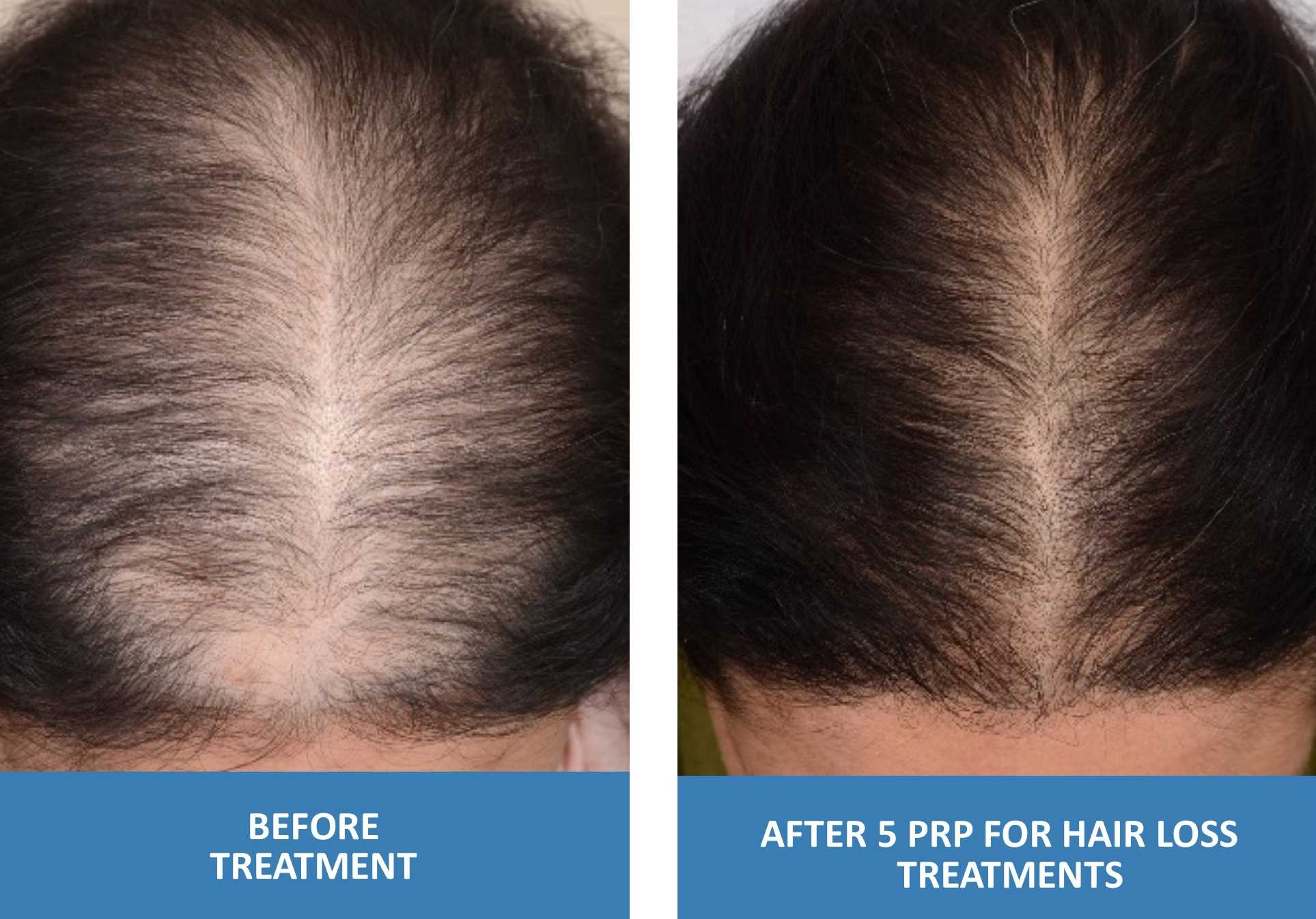 PRP For Hair Loss Before And After Photo Female 5 Treatments Platelet Rich Plasma in Springfield Missouri