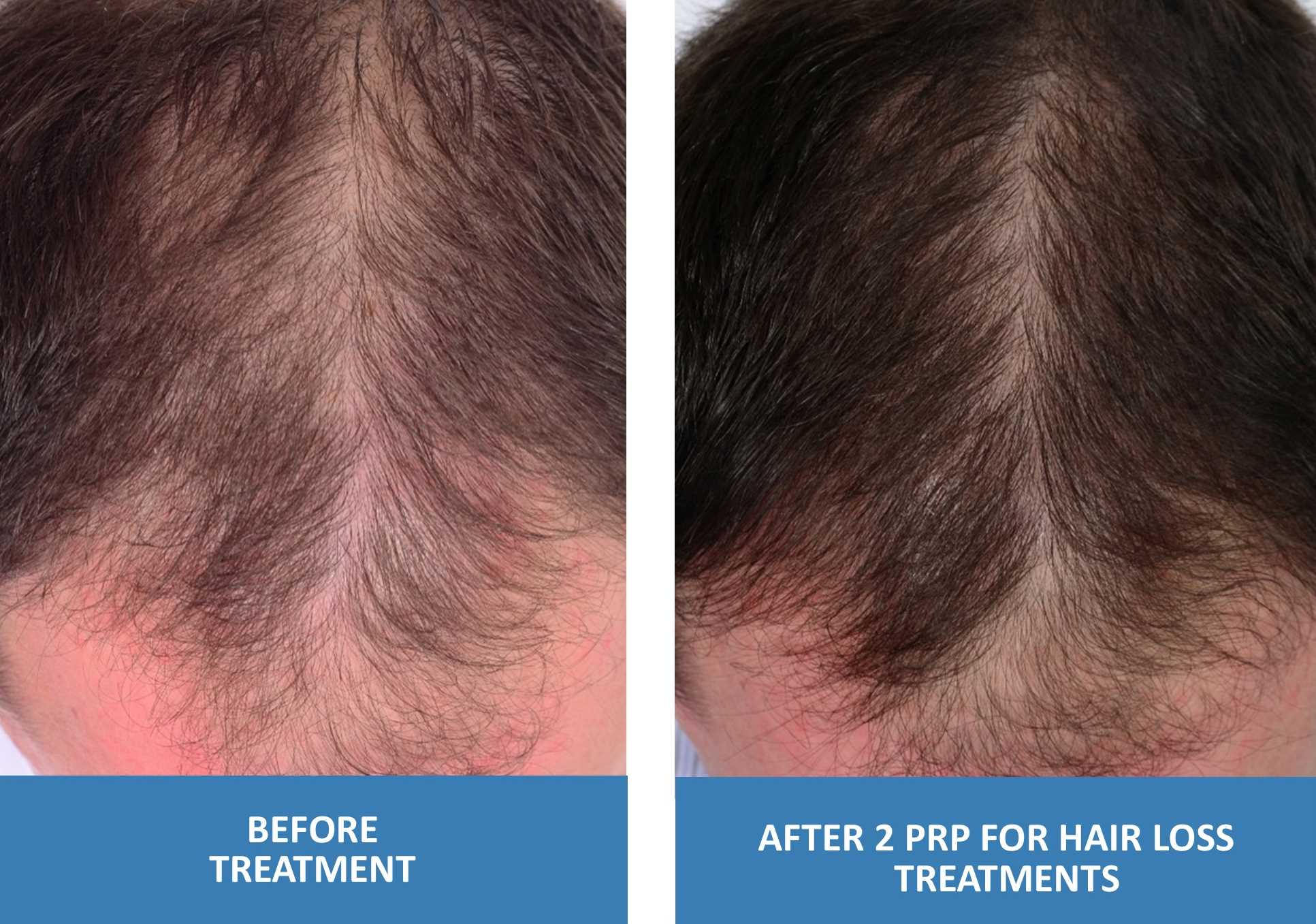 PRP For Hair Loss Before And After Photo Male 2 Treatments Platelet Rich Plasma in Springfield Missouri