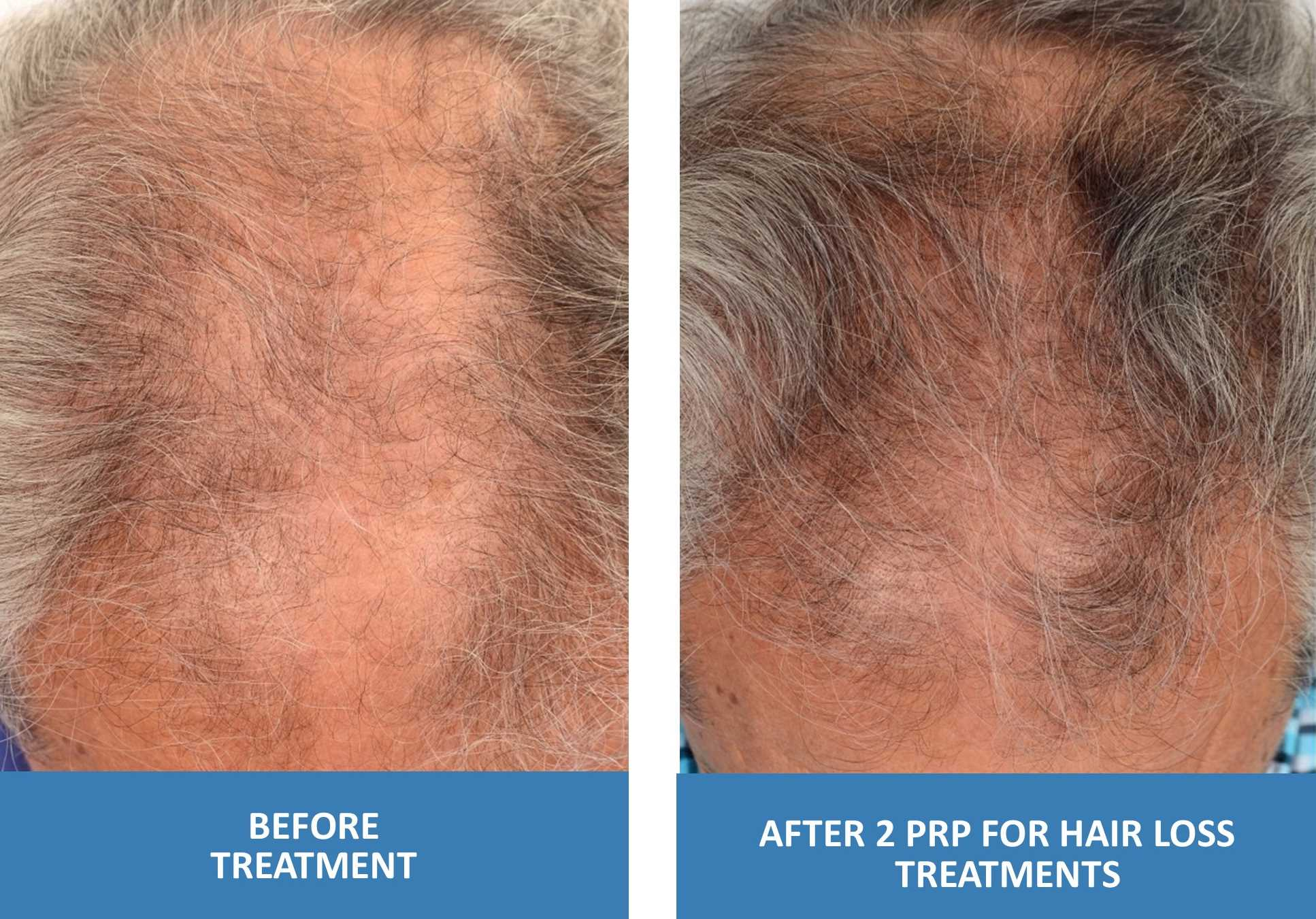 PRP For Hair Loss Before And After Photo Older Male 2 Treatments Platelet Rich Plasma in Springfield Missouri